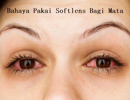 Bahaya Pakai Softlens Bagi Mata